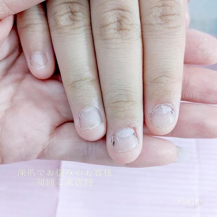 【深爪緩和】薬では深爪を改善できなかったお客様の話