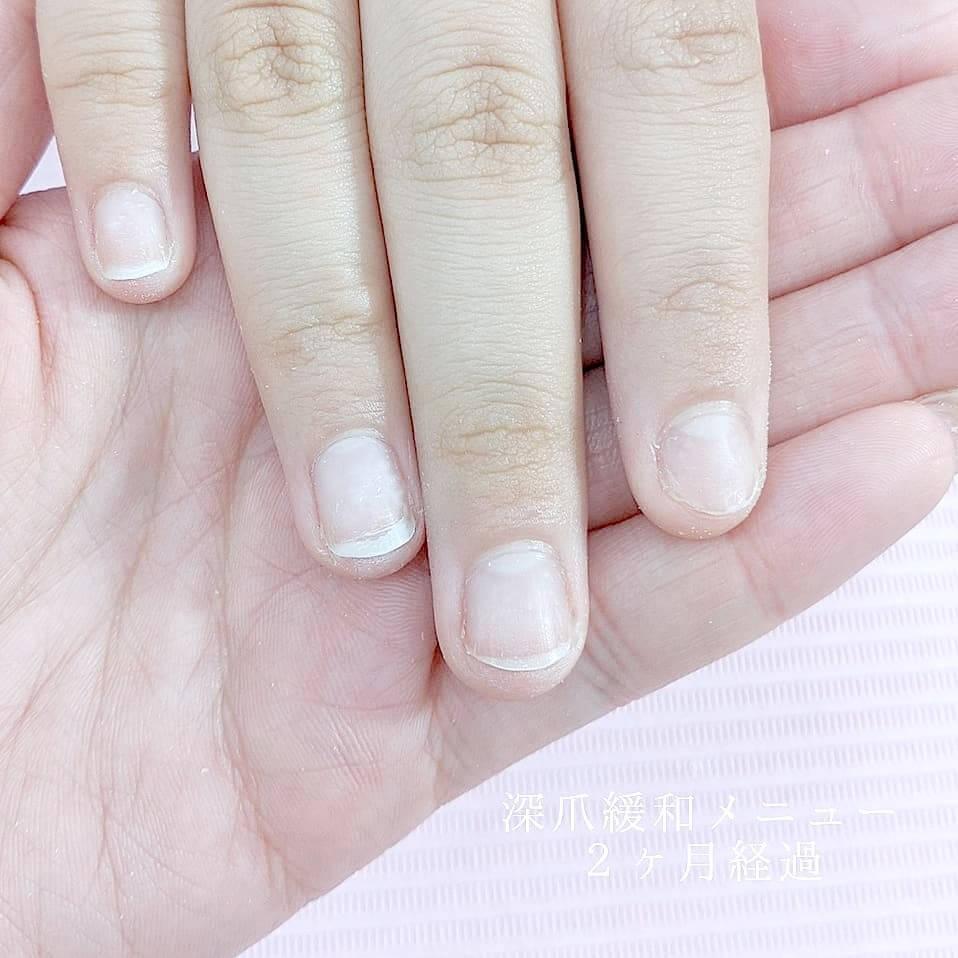【深爪緩和】薬では深爪を改善できなかったお客様の話2